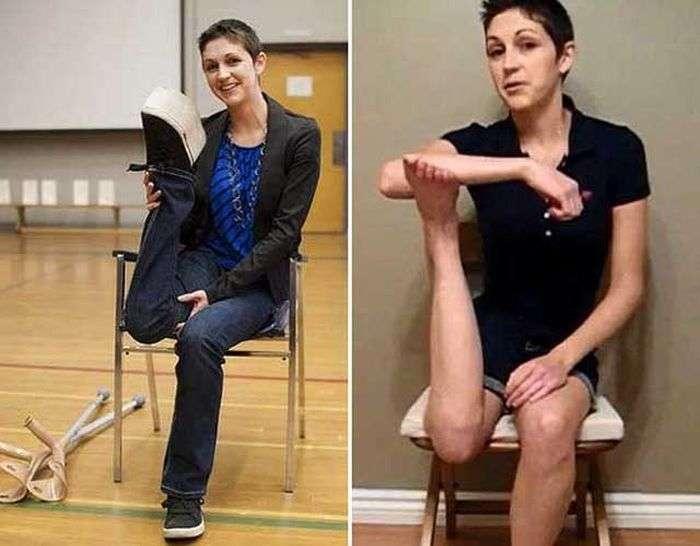 Незвичайна здатність дівчата після раку кісток (2 фото + відео)